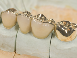 Cast Crowns